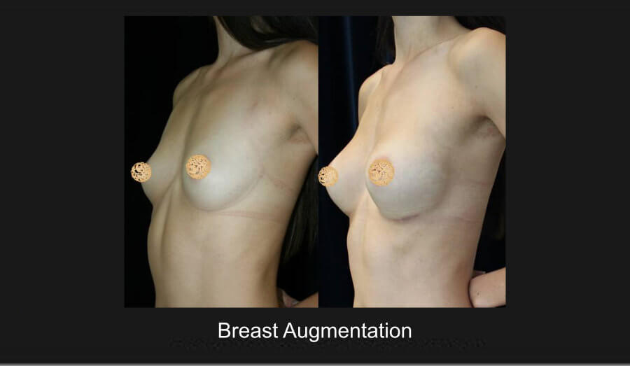 breast-aug-2b