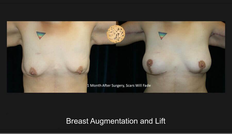 breast-aug-lift-jan18-a