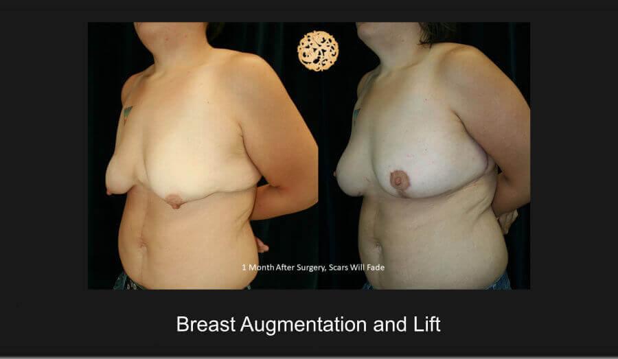 breast-aug-lift-jan18-c