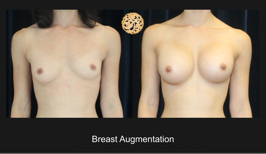 breast-aug21