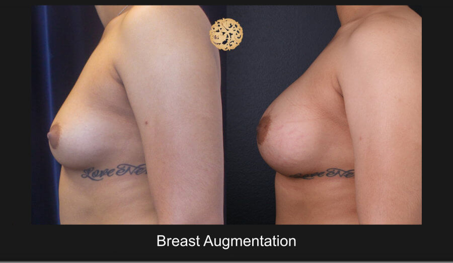breast-augmentation12218I