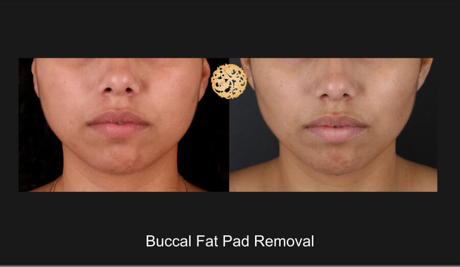 buccal-fat pad removal