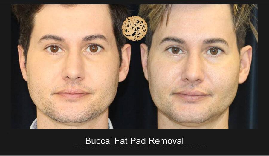 buccal fat pad