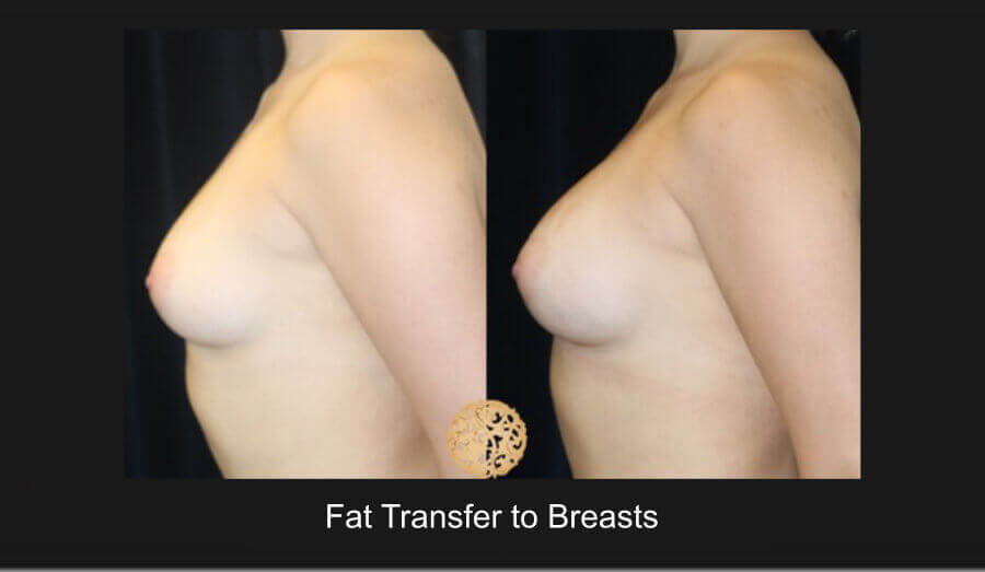 Fat Transfer to Breasts Gallery