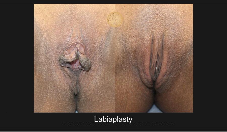 labiaplasty (1)