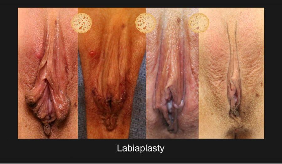 labiaplasty-11717-1b