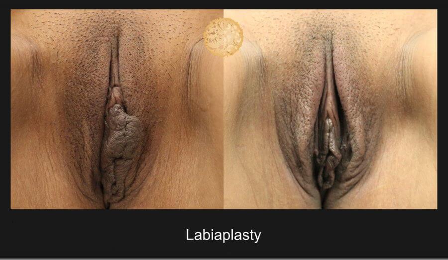 labiaplasty-11717-e