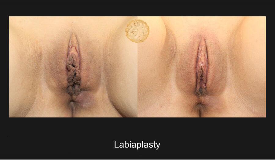 labiaplasty-a