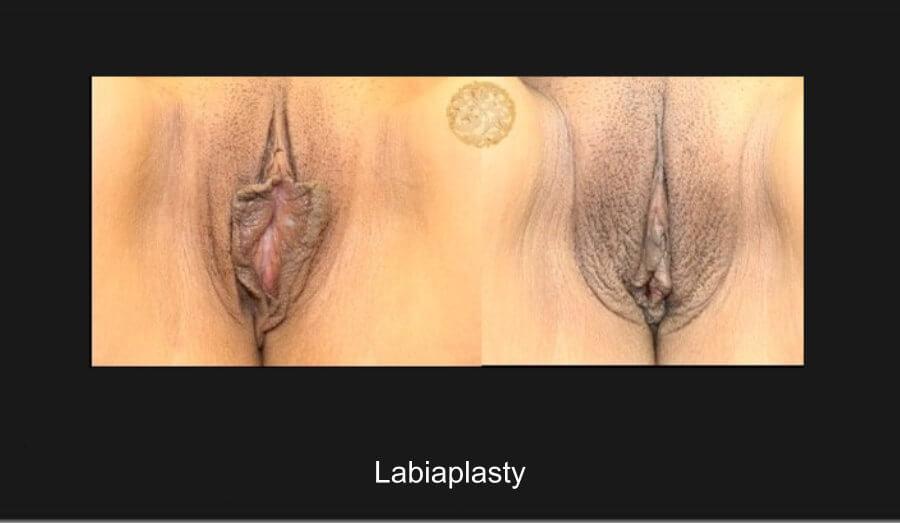 labiaplasty228a