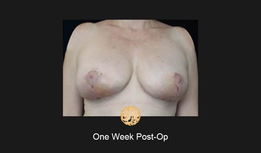 oneweekpost-op