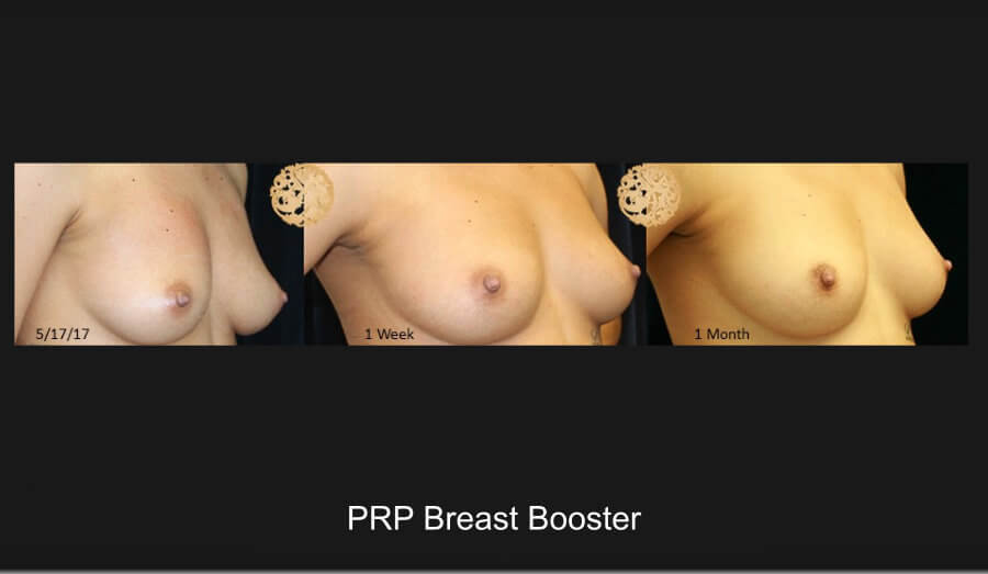 PRP Breast Booster