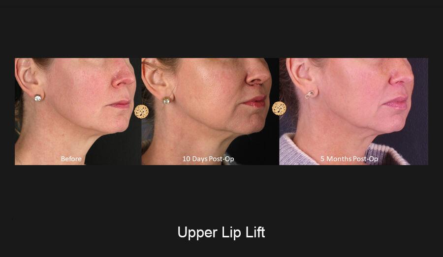 Upper Lip Lift Gallery
