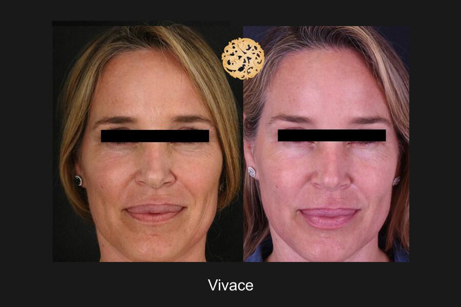 vivace3