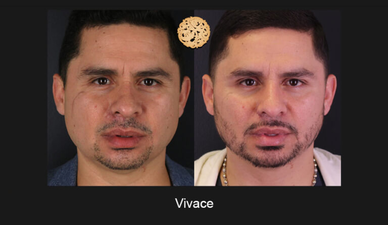 05-03-2019-Vivace-Slide1-768x446