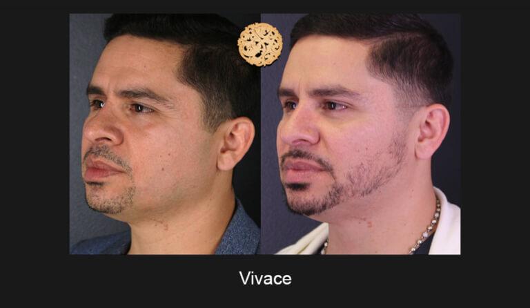 05-03-2019-Vivace-Slide2-768x446