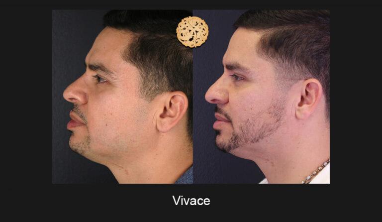 05-03-2019-Vivace-Slide3-768x446
