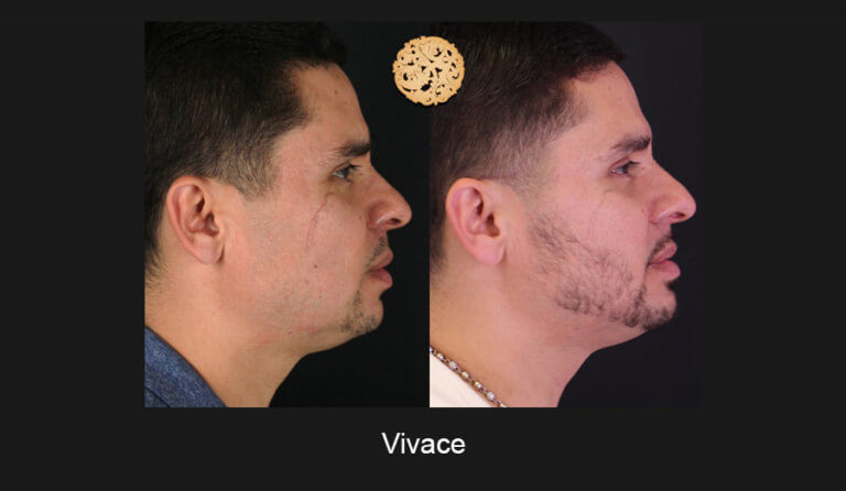 05-03-2019-Vivace-Slide4-768x446