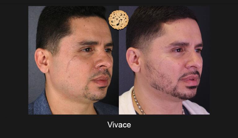 05-03-2019-Vivace-Slide5-768x446