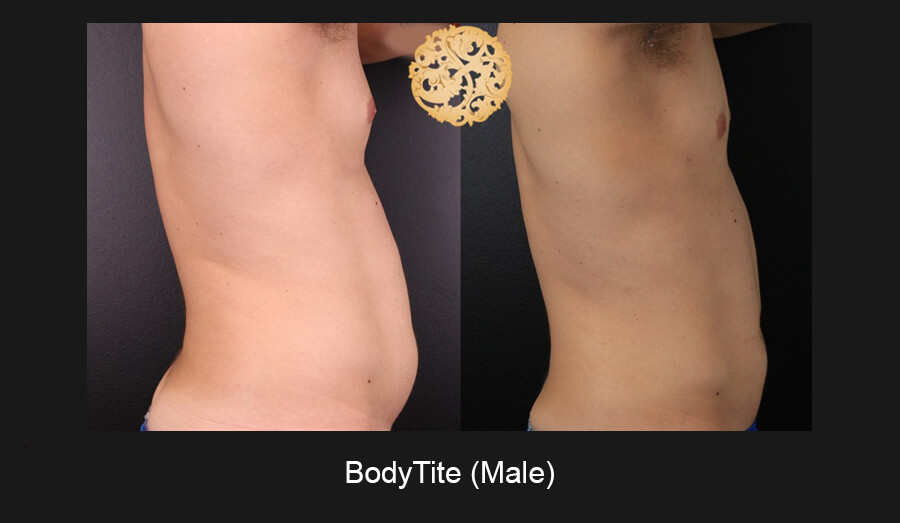 BodyTite – Before and After