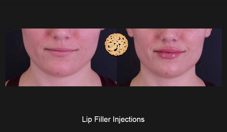 Lip-Filler-Slide1 (1)