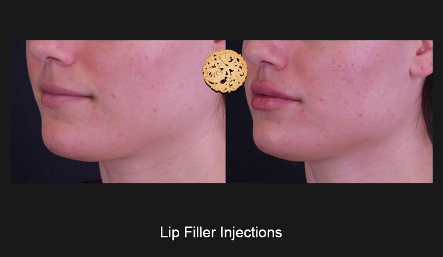 Lip-Filler-Slide2 (1)