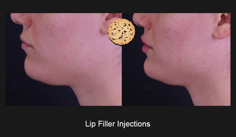 Lip-Filler-Slide3