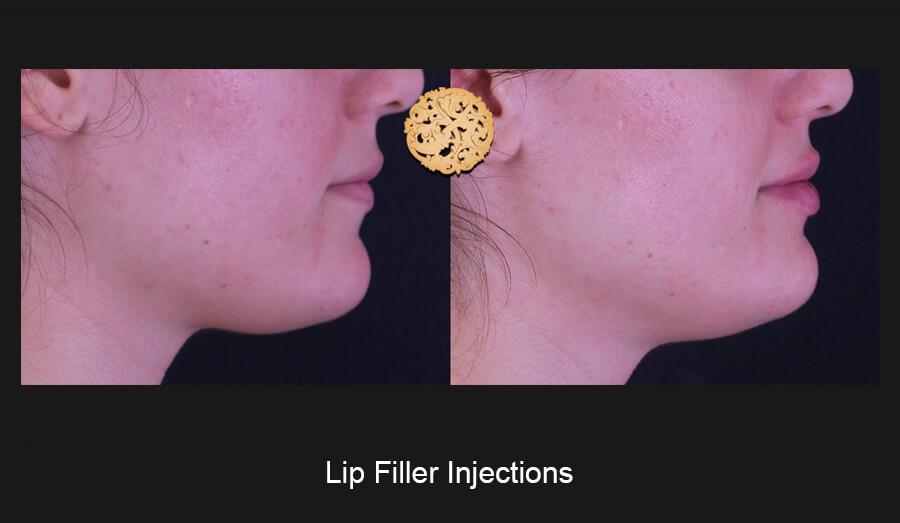 Lip-Filler-Slide4 (1)
