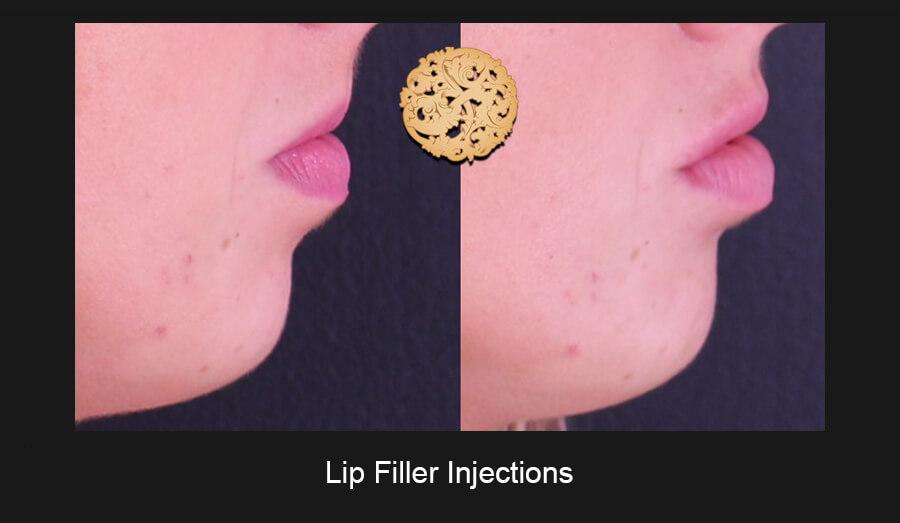 Lip-Filler-Slide4