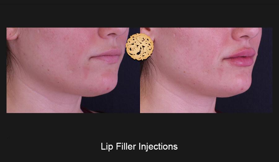 Lip-Filler-Slide5 (1)