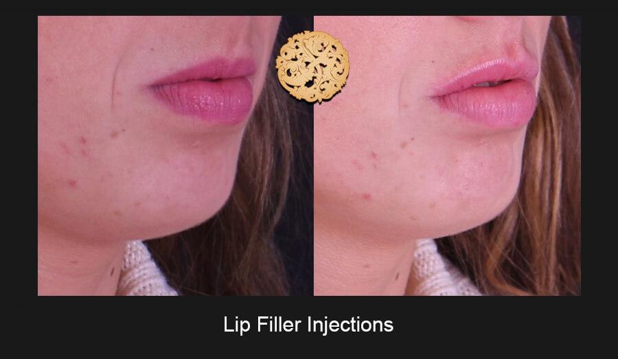 Lip-Filler-Slide5