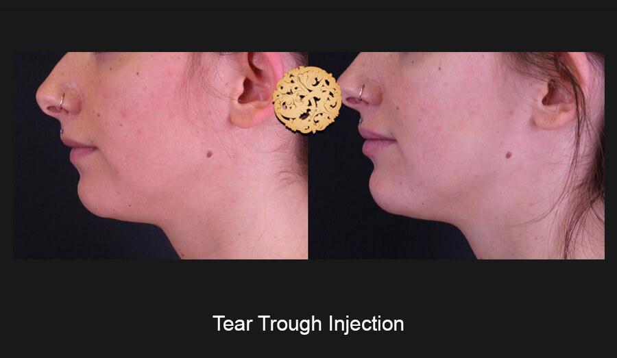 Tear-Slide2.jpg