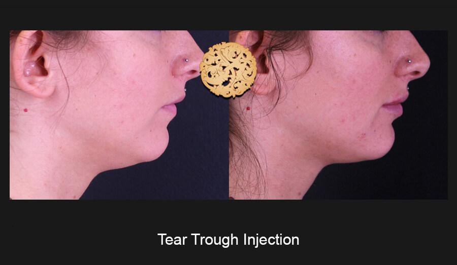 Tear-Slide3