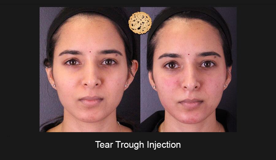 Tear-Trough-Slide1