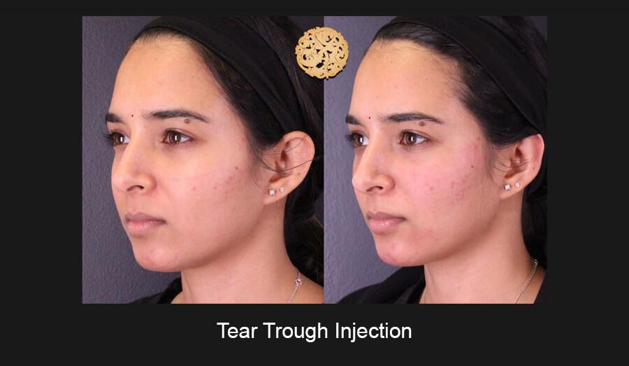 Tear-Trough-Slide2