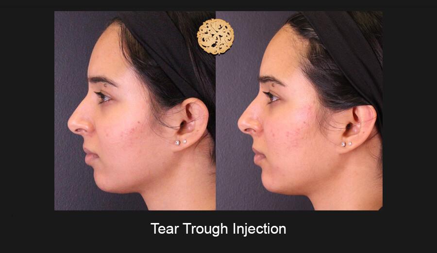 Tear-Trough-Slide3