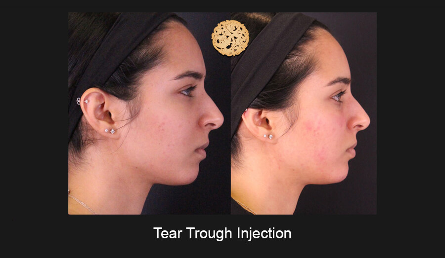 Tear-Trough-Slide4