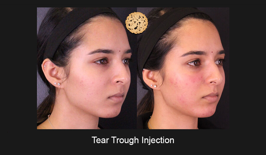 Tear-Trough-Slide5