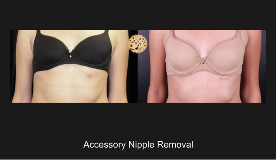 accessory-nipple-removal-1a