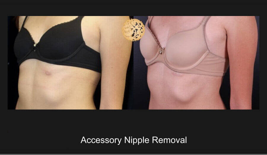 accessory-nipple-removal-1b