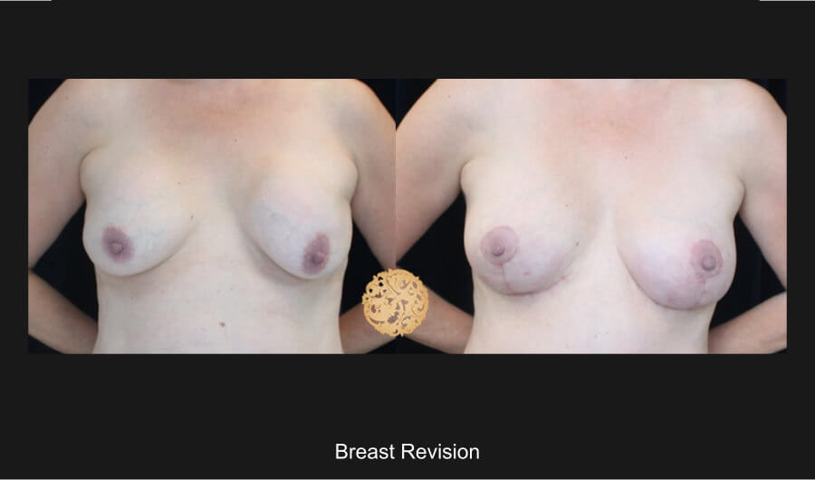 breast-revision-a