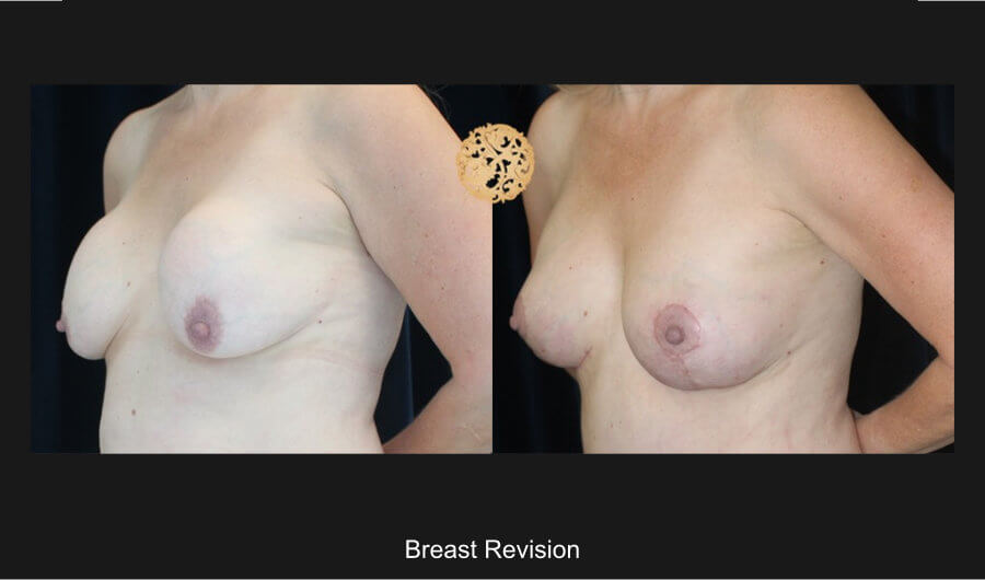 breast-revision-b