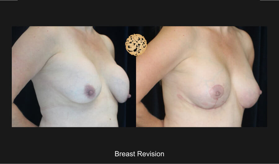 breast-revision-c