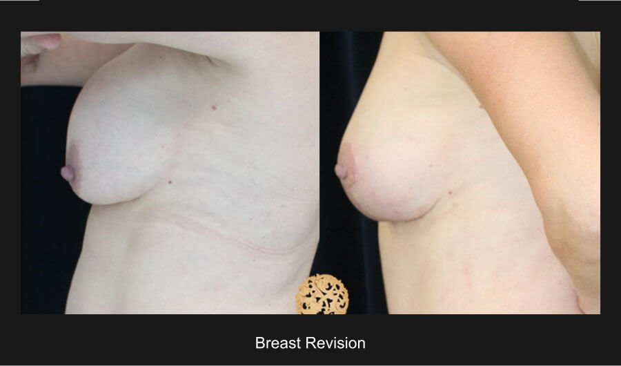 breast-revision-d