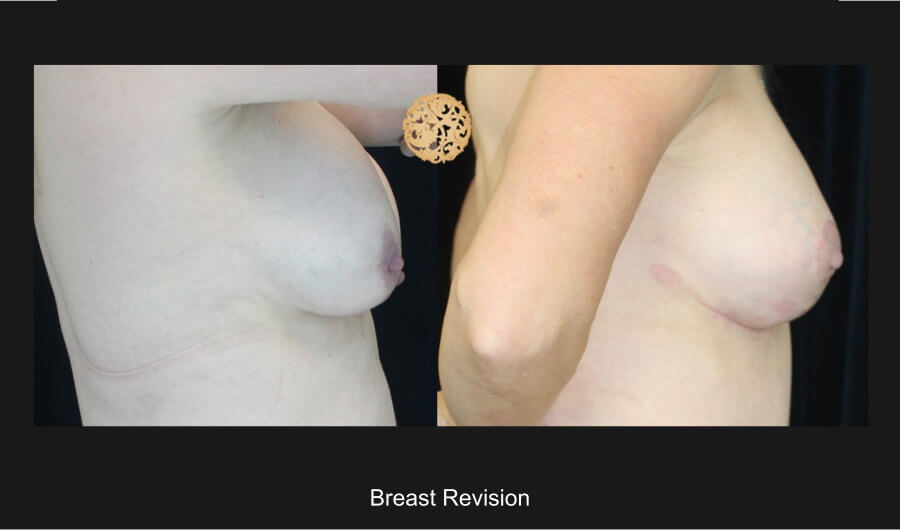 breast-revision-e