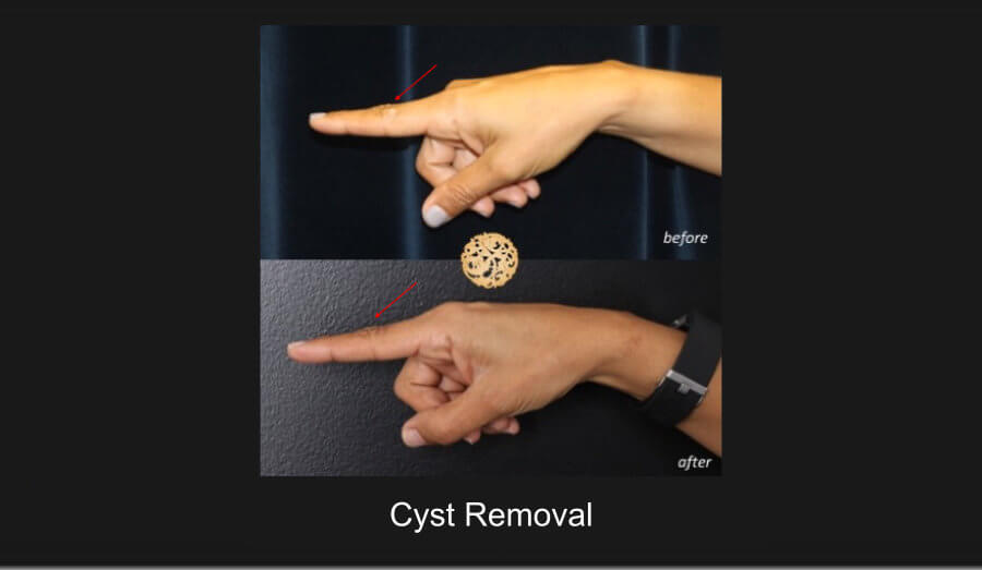 cyst-removal-finger1