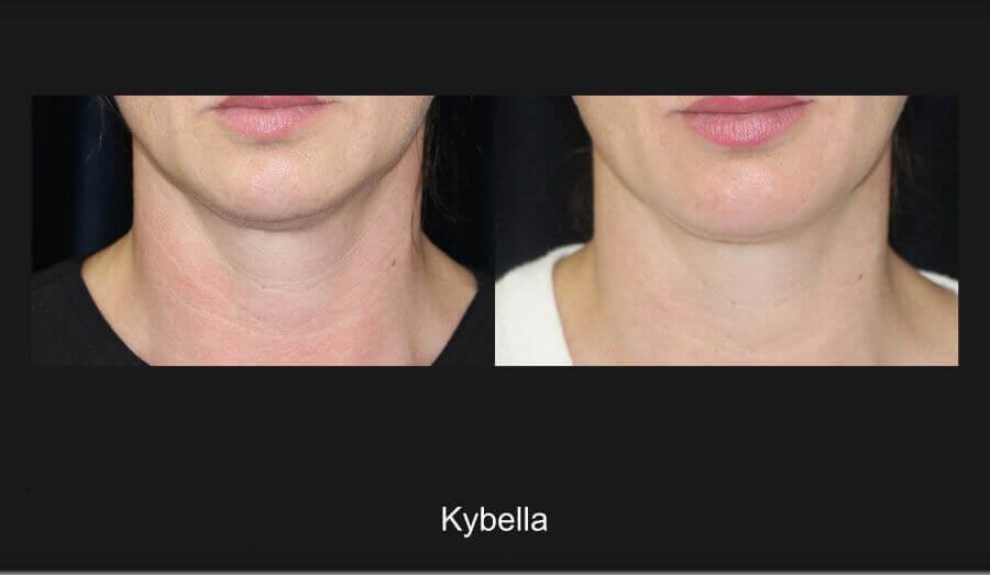 Kybella Gallery