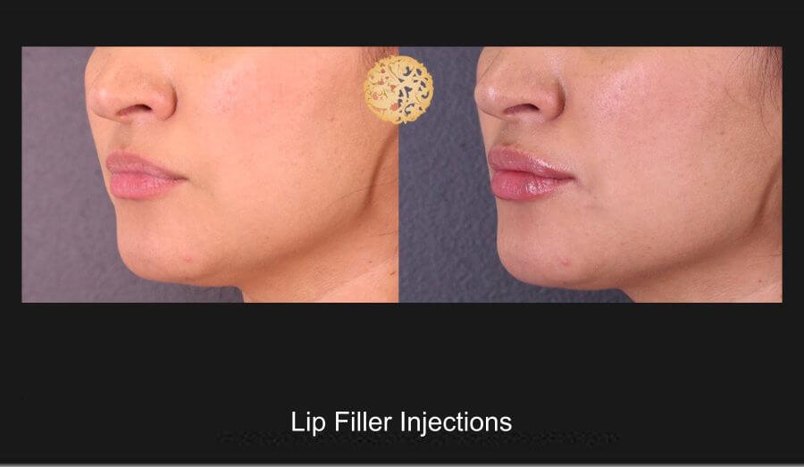 lip-filler-1b