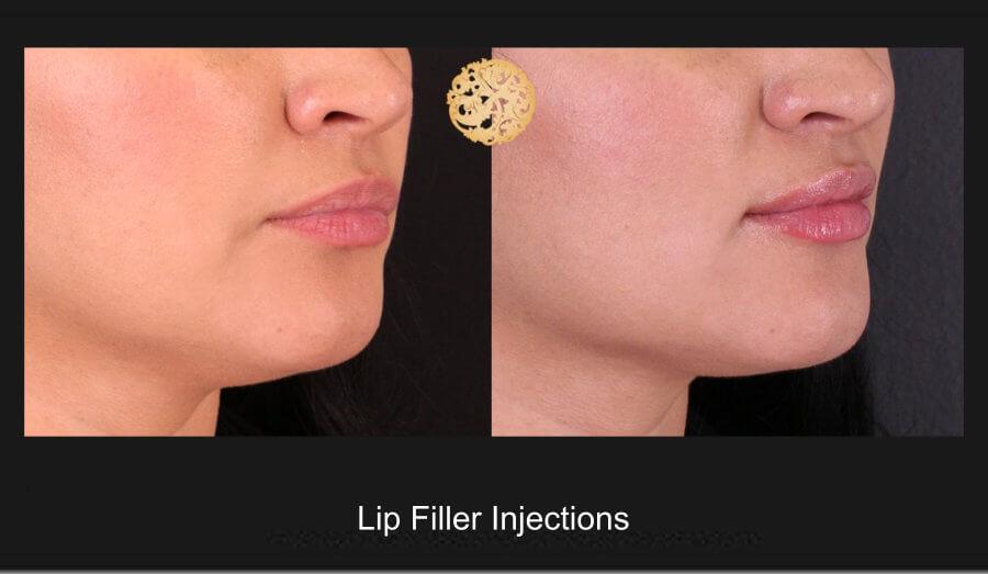 lip-filler-1c