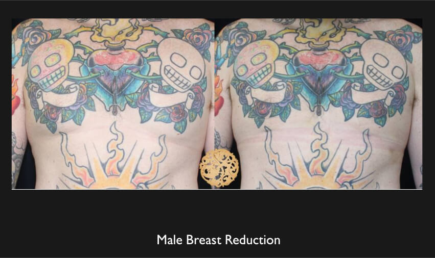 Male breast reduction - Nazarian Plastic Surgery - Breast Augmentation in Beverly Hills, Los Angeles