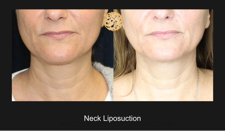 neck-liposuction-5